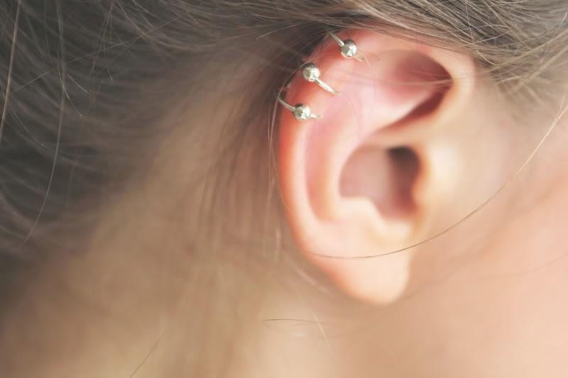 Ear Stapling photo