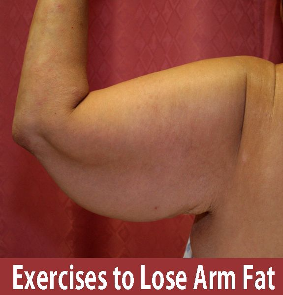 Exercises For Losing Arm Fat