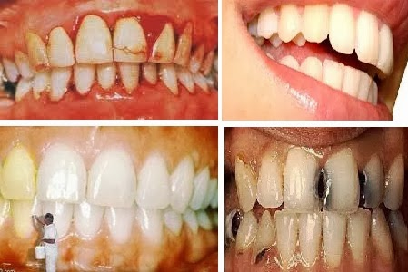 Natural Ways to Whiten Teeth Yellow and Black perforated