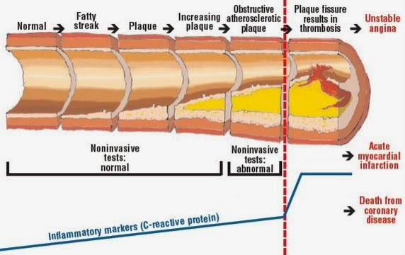 punca sakit jantung dan stroke