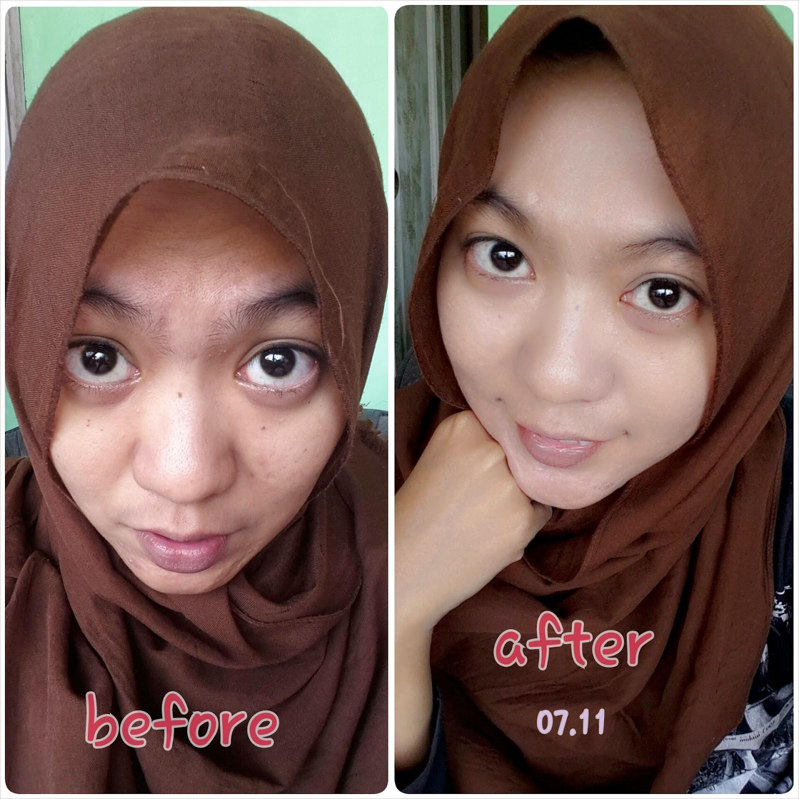 E Diary Of Ryananena Review Pixy Bb Cream Bright Fix Bare Face Setelah Pengaplikasian Bbcream