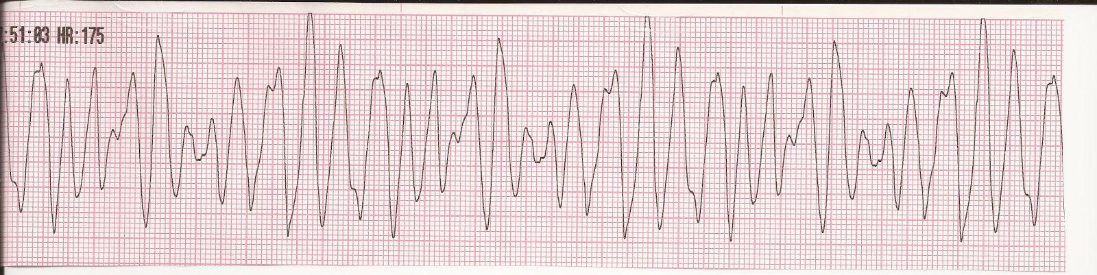 Float Nurse: ACLS Rhythms: Ventricular rhythms Ventricular Tachycardia Rhythm Strip