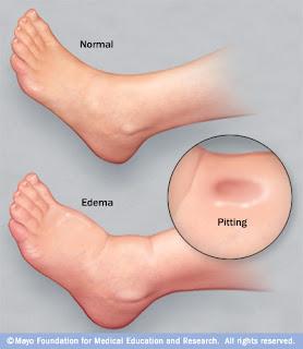 Pés inchados (edema)  pés normais