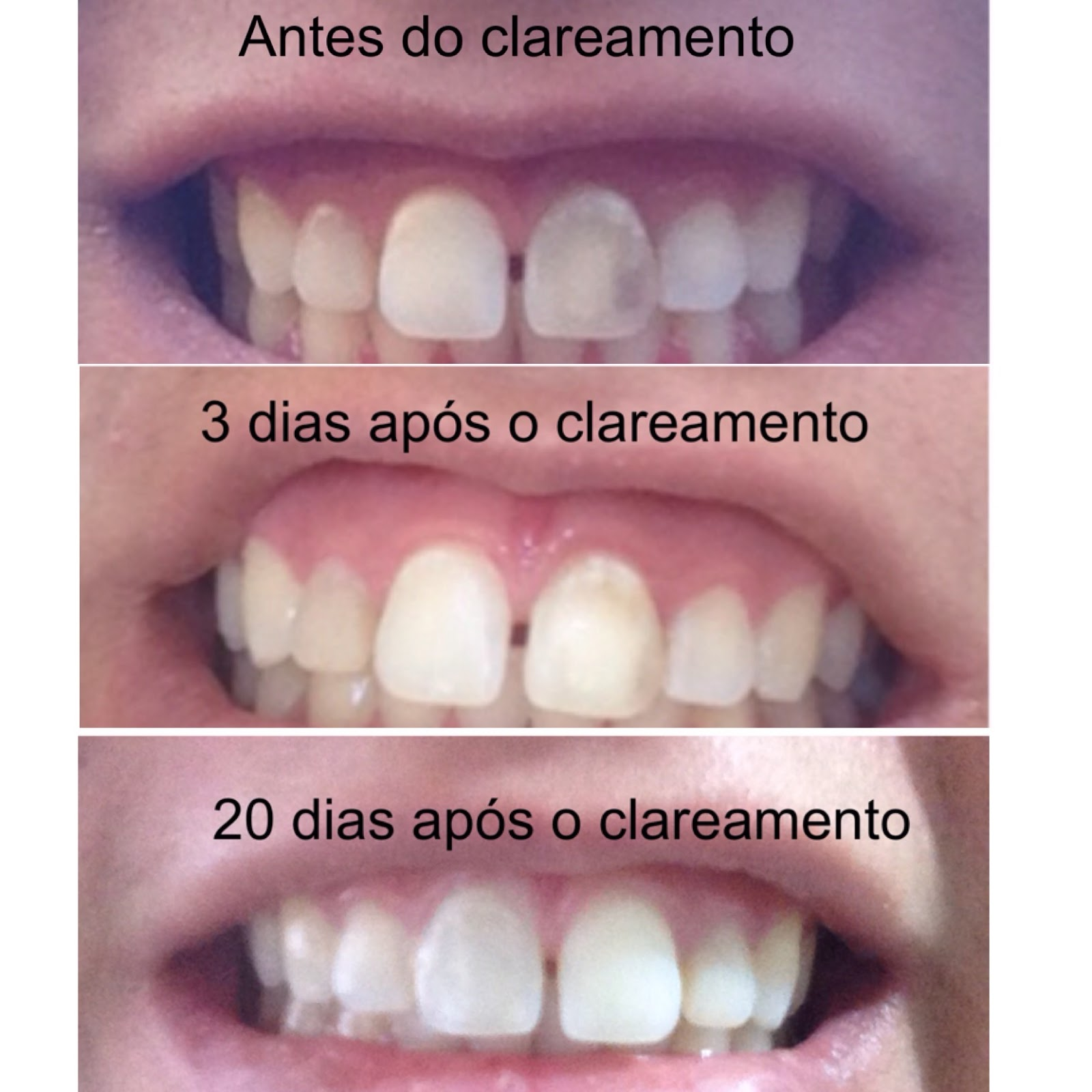 Clareamento Dental Interno Minha Experiencia D Campos