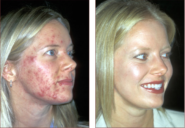 Accutane - The Feisty Acne Eliminator - TALKING ACNE