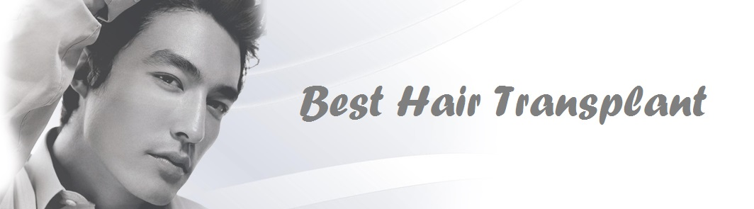 Best hair transplant Los Angeles - Revive hair restoration