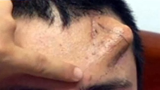 Man Has New Nose Grown On His Forehead