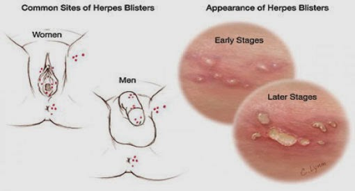 Herpes pictures male testicles drop