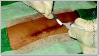 Fechamento de um corte com adesivo tecidual (cola).