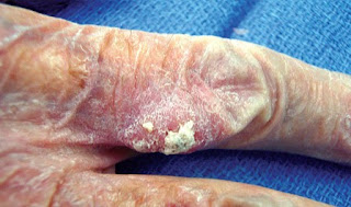 Skin cancer images