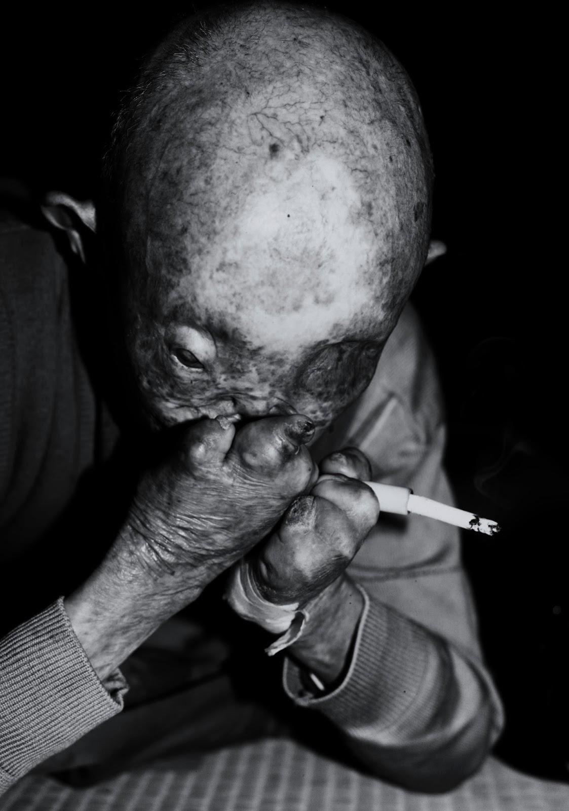 ハンセン病 - Leprosy