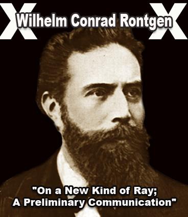 Sejarah ditemukannya Sinar X oleh Rontgent