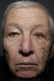 This trucker spent 28 years with half his face in the sun. Now one side of his face is badly damaged and wrinkled.