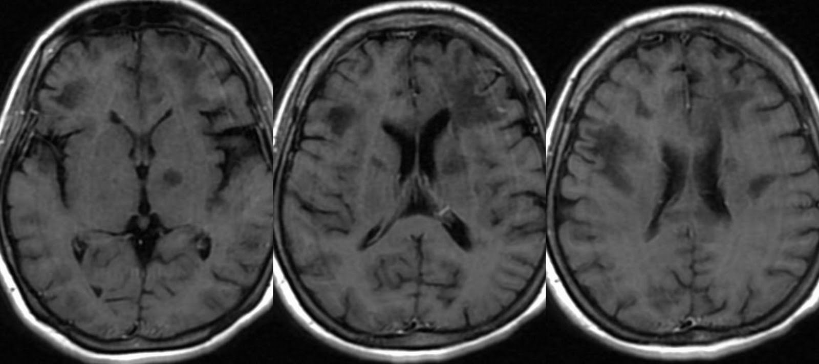Brain lesions from hiv dating 3