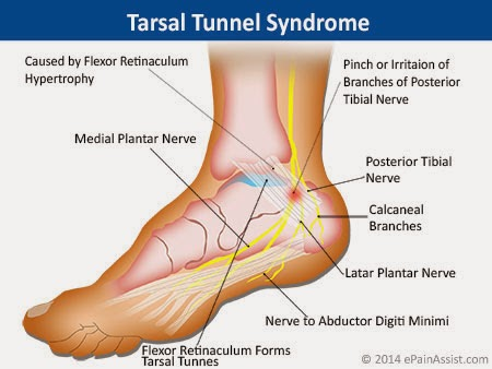 Blue Pacific Massage Massage Therapy Tarsal Tunnel Syndrome
