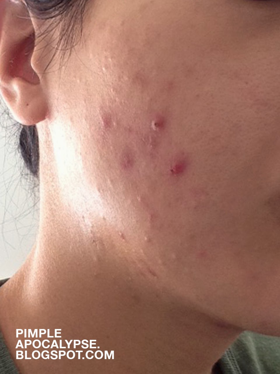 cystic acne, clogged pores, acne breakouts, allergic reaction