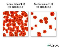 Nursing Assessment for Anemia