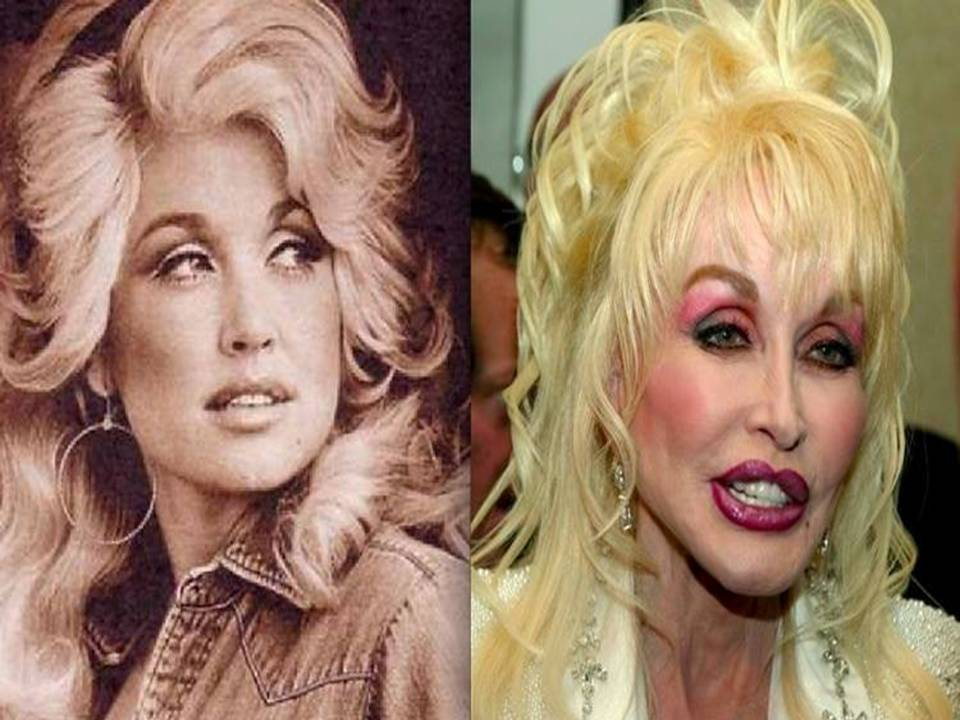 10 Worst Celebrity Plastic Surgery Cases Of All Time