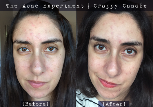 Caru Witch Hazel + Bee Balm Toner Before & After