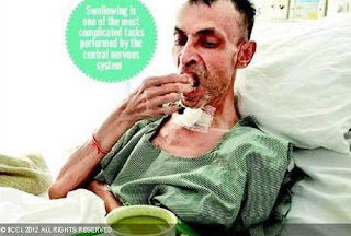 Lupa Cara Menelan Di Usia 53 Tahun [ www.BlogApaAja.com ]