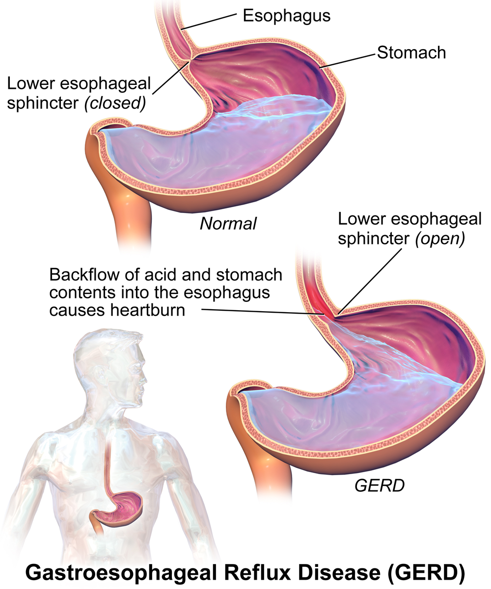acid reflux disease in adult