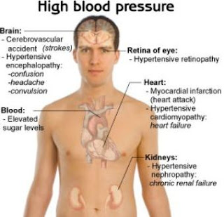 4 Tips for High Blood Pressure Diet - Food to Eat and to Avoid