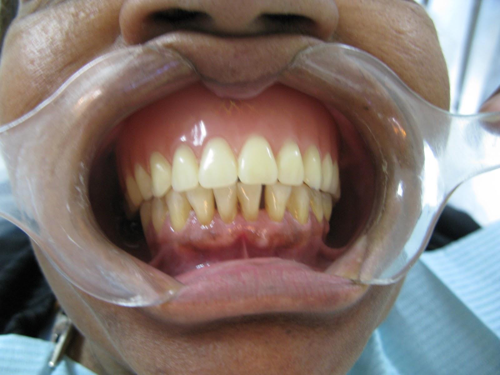 Caso 2 Clinica Iii Protesis Total Superior Vs Ppr Cromo