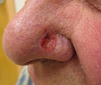 skin cancer nose