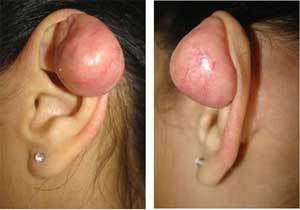 fotos de Piercing Inflamado