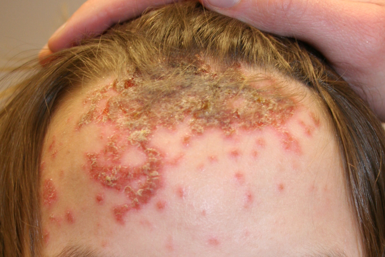 Impetigo - Wikipedia