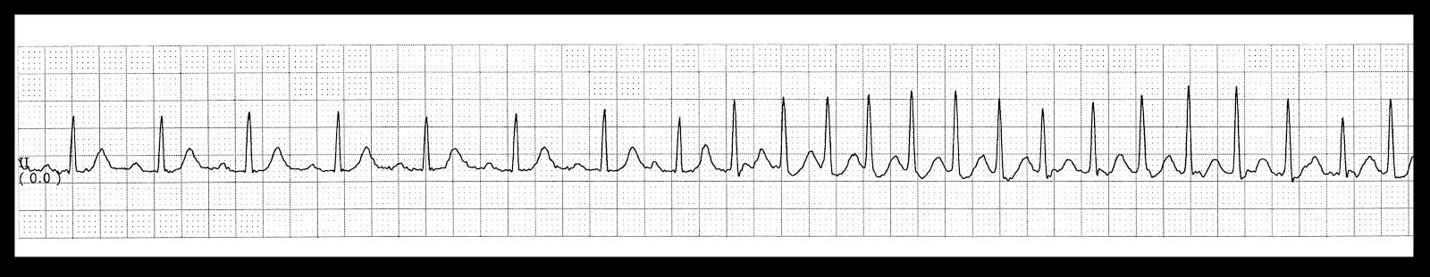 how to stop supraventricular tachycardia