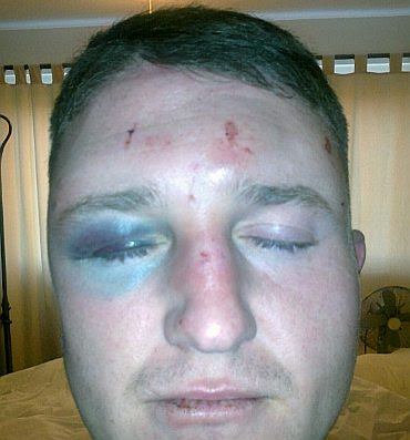 Tommy Robinson bruised