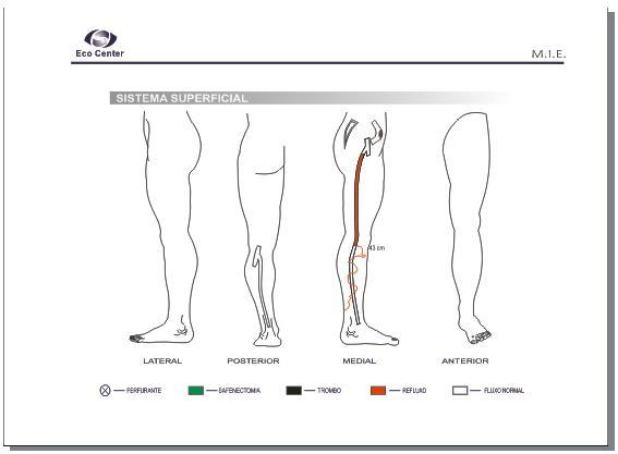 Mundo da Fisioterapia: Avaliação Funcional para MMII