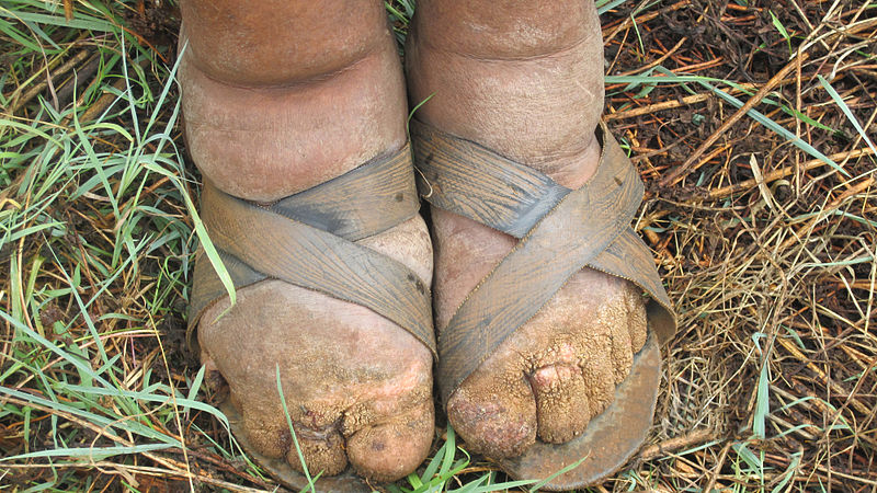 tywkiwdbi tai wiki widbee disease of the day podoconiosis