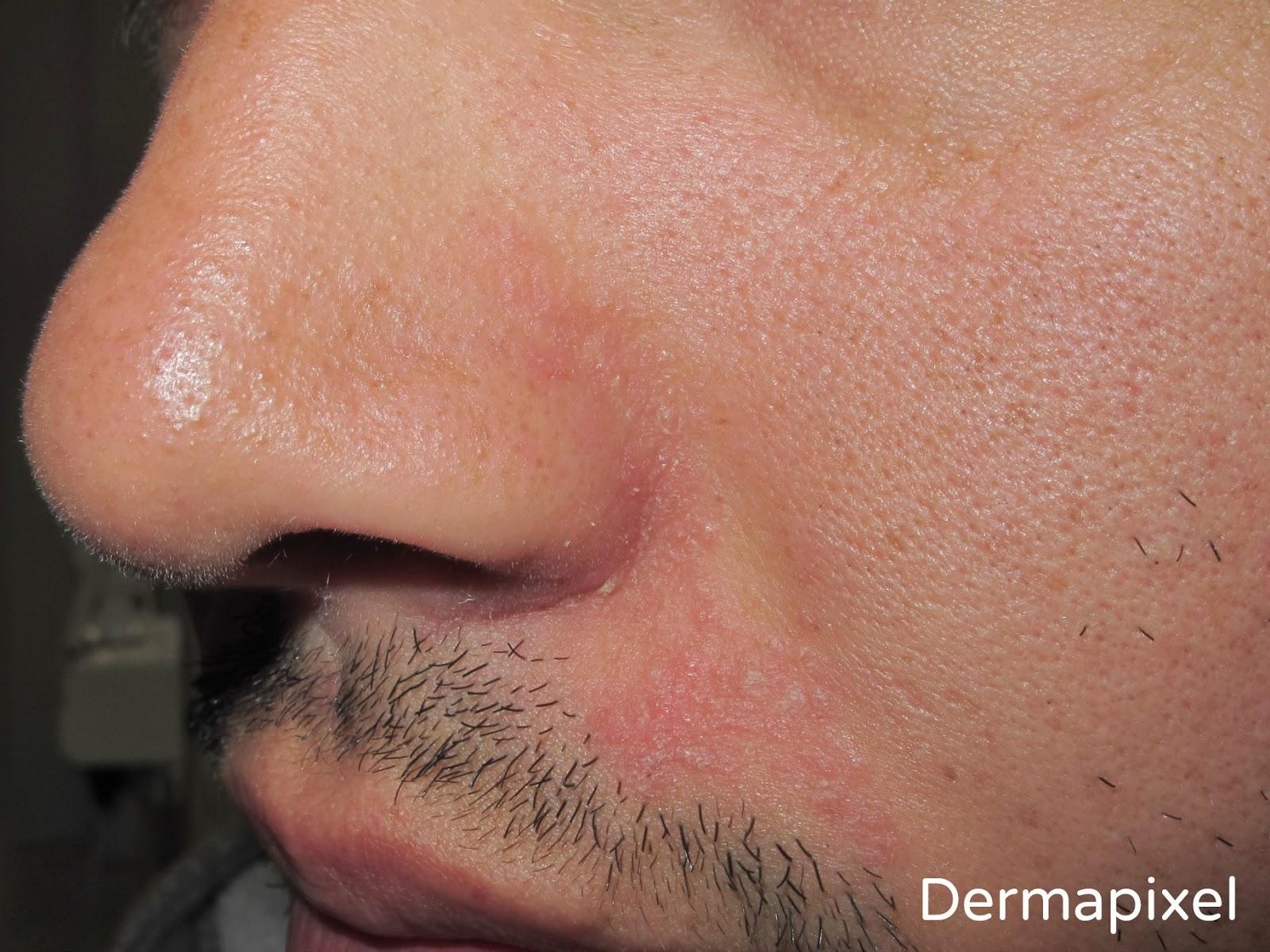 Atopichesky la dermatitis de la parte pilosa de la cabeza