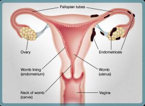 cara herbal mengatasi penyakit endometriosis