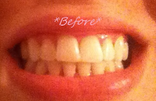 DIY whiten your teeth,cheap teeth whitening,teeth whitening,quick teeth whitening
