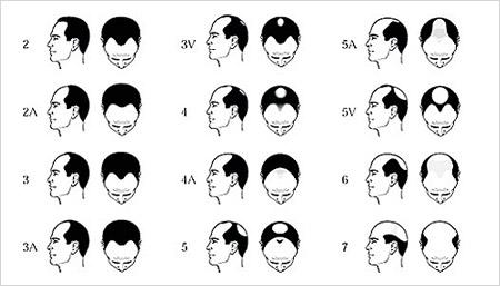 Carta Hamilton Keguguran Rambut Sehingga Botak