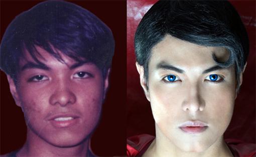 herbert, superman philippines, surgery king asian