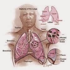Pengobatan Tumor Ganas