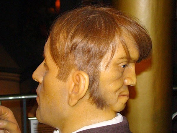 Photo from: http://wereblog.com/edward-mordake-two-faced-man