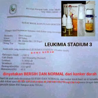 Leukimia+kanker+darah.jpg