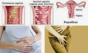 obat sakit keputihan secara alami