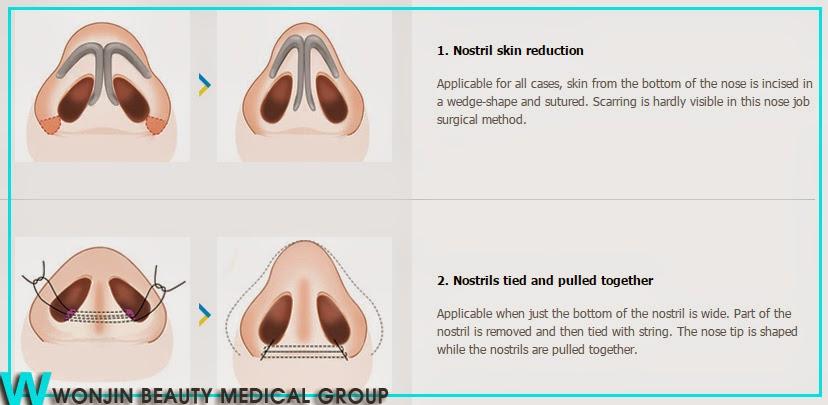 the_best_korean_rhinoplasty_hospital_wonjin