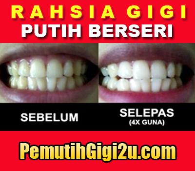 Putihkan gigi yg kuning dan kusam