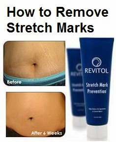 Revitol Stretch Marks Removal Cream