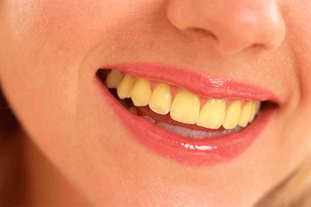 5 Cara Untuk Memutihkan Gigi Kuning Akibat Rokok 59fiftyguild