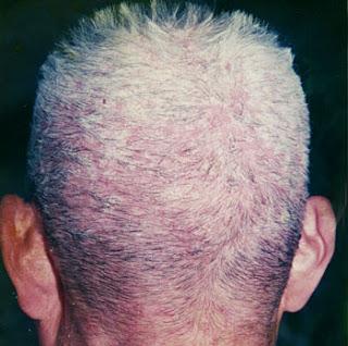 nguyên nhân gây bệnh nấm da đầu