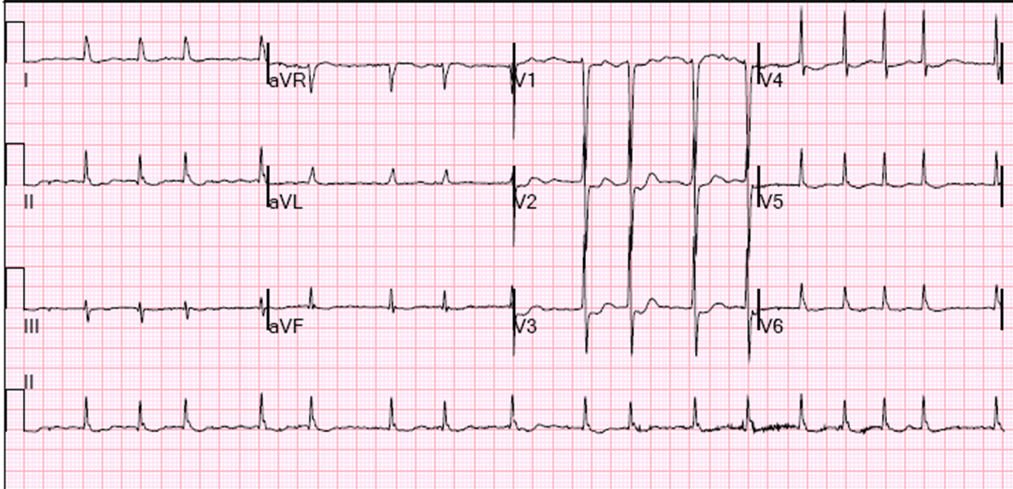 Dr Smith S Ecg Blog Looks Like A Posterior Stemi Is It