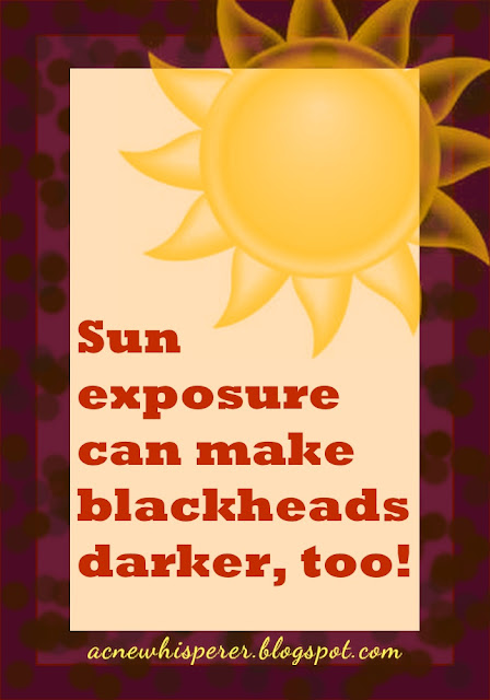 Sun exposure can make blackheads darker!  Read about it on the Acne Whisperer Blog